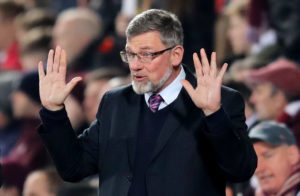 Hearts boss Craig Levein insists he is feeling no added William Hill Scottish Cup semi-final pressure following last weekend's defeat to Hibernian.